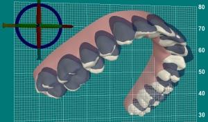 invisalign - computergestuetzte Simulation der Zahnbewegungen