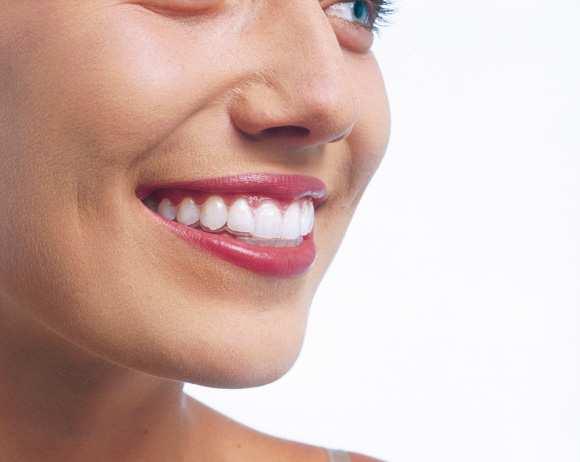 invisalign aligner - unsichtbare Zahnspange im Mund