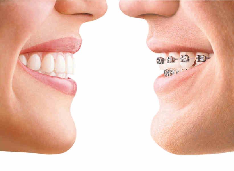 invisalign im optischen Vergleich zu einer festen Zahnspange