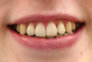 Lingualtechnik - innenliegende Zahnspange