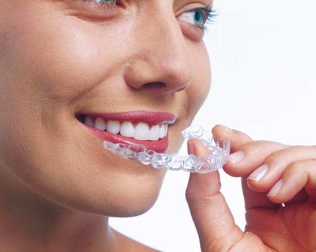 invisalign aligner - unsichtbare Zahnspange furr den Oberkierfer