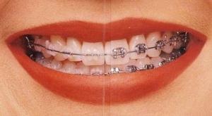 Feste Zahnspange - Vergleich von Keramik und Metall