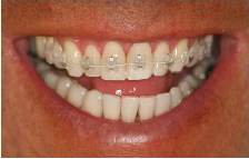 Feste Zahnspange - Kombination aus Keramik und Lingualtechnik